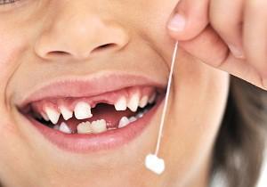 порядок выпадения молочных зубов у детей