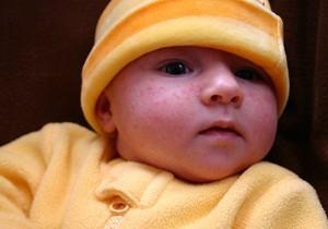 прыщи на лице у новорожденных в месяц